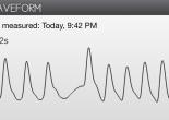 Waveform showing skipped beat